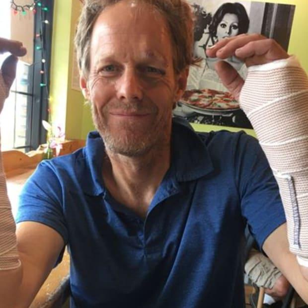 Facebook - Tuey Wilson Comic Stunt Juggler - broken wrists