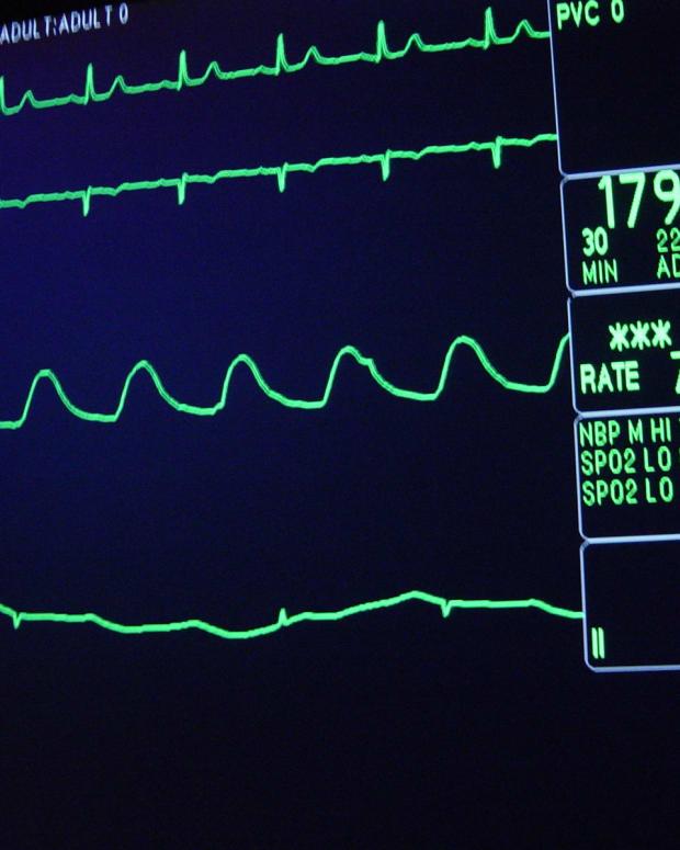 heart monitor, hospital