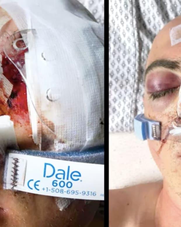 Wounded protester Soren Stevenson.