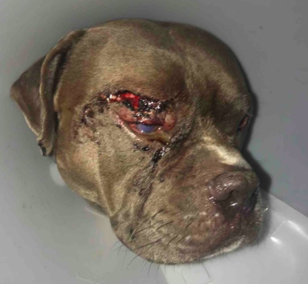 The injury inflicted on Conan, who suffered a shattered eye socket.